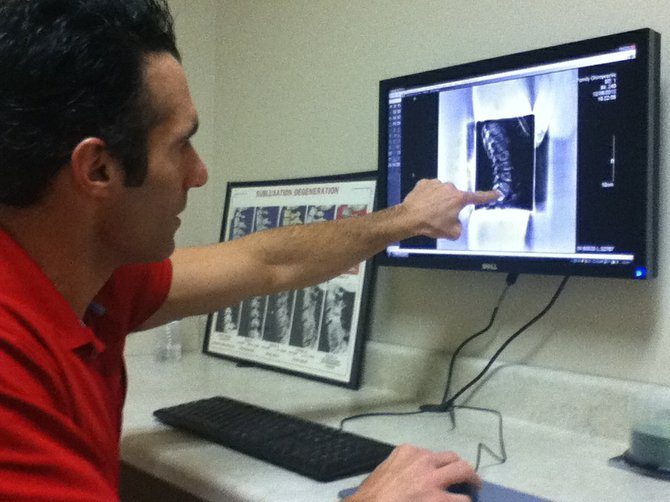 Dr. Randy Boivin points to an X-ray of his son's spine, which he said is 99 percent perfect. Boivin, who recently opened Boivin Family Chiropractic in Baldwinsville, adjusted both of his children at birth and provides regular chiropractic care to entire families.
